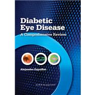 Diabetic Eye Disease A Comprehensive Review