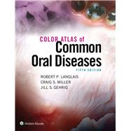 Color Atlas of Common Oral Diseases by Langlais, Robert; Miller, Craig, 9781496332080