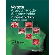 Vertical Alveolar Ridge Augmentation in Implant Dentistry: A Surgical Manual by Tolstunov, Len, 9781119082590