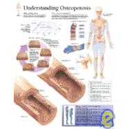Understanding Osteoporosis Paper Chart by Scientific Publishing, 9781930633308