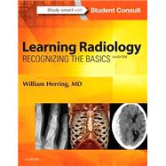 Learning Radiology: Recognizing the Basics by Herring, William, M.d., 9780323328074