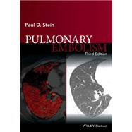 Pulmonary Embolism by Stein, Paul D., 9781119039082