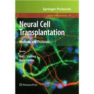 Neural Cell Transplantation by Scolding, Neil J.; Gordon, David, 9781603279307