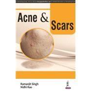 Acne & Scars by Singh, Ramanjit, 9789351529699